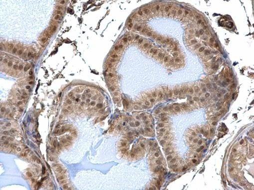 DDB1 Antibody in Immunohistochemistry (Paraffin) (IHC (P))