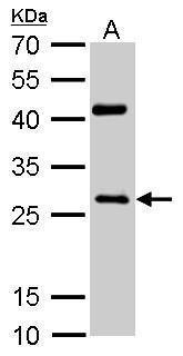 NQO1 Antibody in Western Blot (WB)
