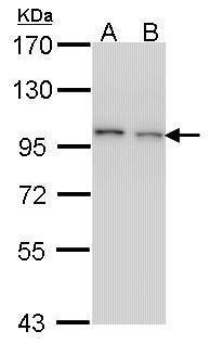 EPS8 Antibody in Western Blot (WB)