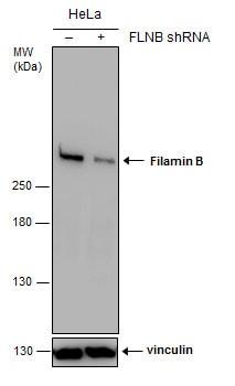Filamin B Antibody in Knockdown