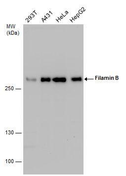 Filamin B Antibody in Western Blot (WB)