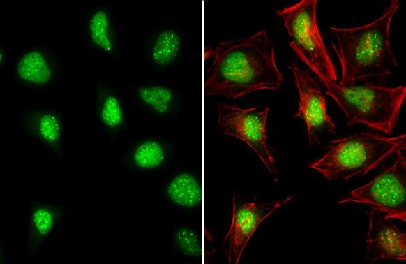 ATRX Antibody in Immunocytochemistry (ICC)