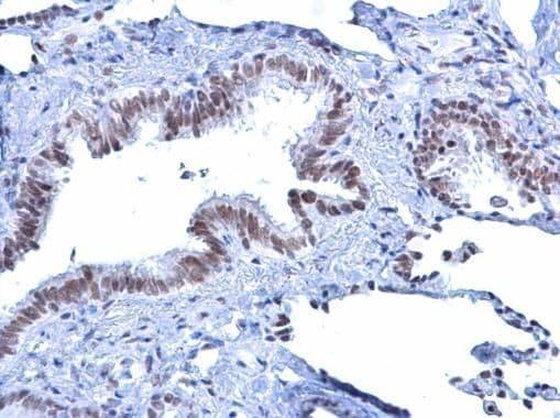 ATRX Antibody in Immunohistochemistry (Paraffin) (IHC (P))