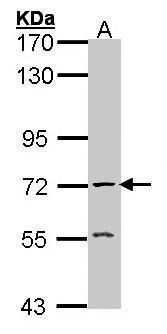 Acetylcholinesterase Antibody in Western Blot (WB)