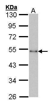 CtBP1 Antibody in Western Blot (WB)