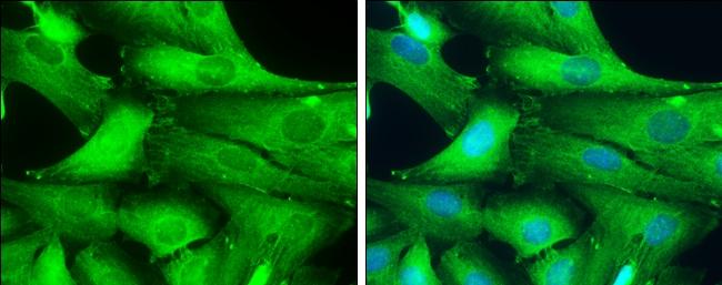 GAD67 Antibody in Immunocytochemistry (ICC/IF)