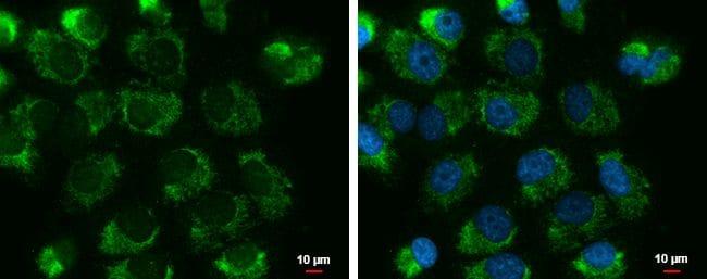 UQCRFS1 Antibody in Immunofluorescence (IF)