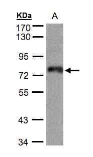 ZNF7 Antibody in Western Blot (WB)