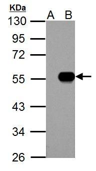 IP6K1 Antibody in Western Blot (WB)