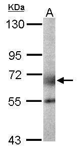GALNT2 Antibody in Western Blot (WB)