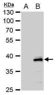 CHI3L2 Antibody in Western Blot (WB)