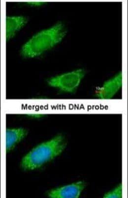 ME1 Antibody in Immunofluorescence (IF)