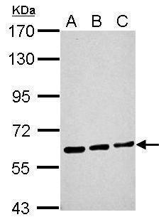 ME1 Antibody in Western Blot (WB)