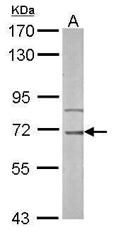 IRAK-M Antibody in Western Blot (WB)