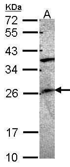 GRAP Antibody in Western Blot (WB)