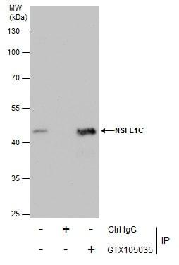 NSFL1C Antibody in Immunoprecipitation (IP)