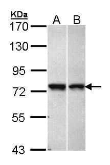 VPS51 Antibody in Western Blot (WB)
