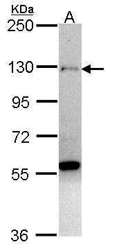 ZNF574 Antibody in Western Blot (WB)