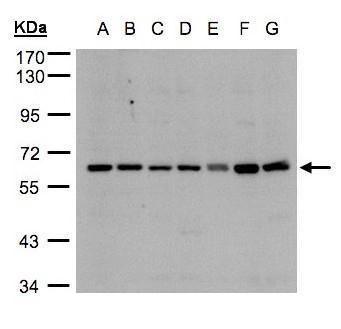CYP24A1 Antibody in Western Blot (WB)