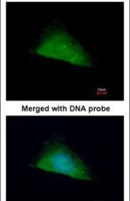 TRIM37 Antibody in Immunofluorescence (IF)