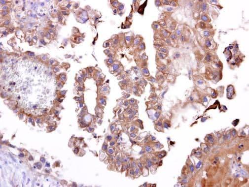 TATDN1 Antibody in Immunohistochemistry (IHC)