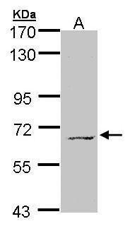 MPP3 Antibody in Western Blot (WB)