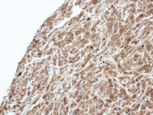 PI3K p55 gamma Antibody in Immunohistochemistry (Paraffin) (IHC (P))