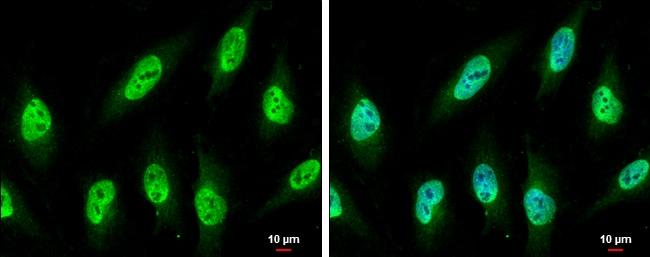 NUP62 Antibody in Immunocytochemistry (ICC)