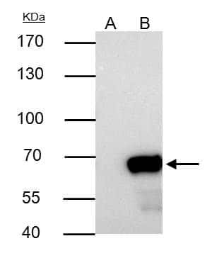 NUP62 Antibody in Immunoprecipitation (IP)