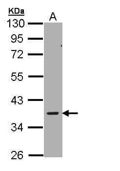 AMPK gamma-2 Antibody in Western Blot (WB)