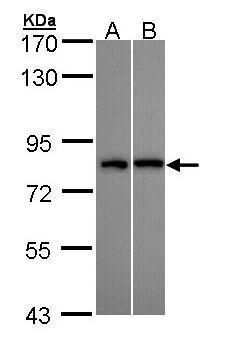 DDX3Y Antibody in Western Blot (WB)