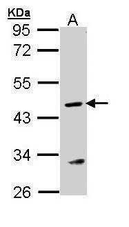 ASL Antibody in Western Blot (WB)