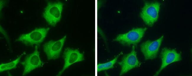 FASN Antibody in Immunocytochemistry (ICC)