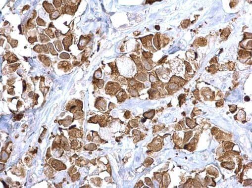 FASN Antibody in Immunohistochemistry (Paraffin) (IHC (P))
