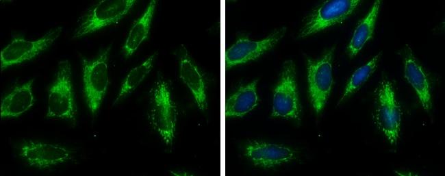 Fumarase Antibody in Immunocytochemistry (ICC/IF)
