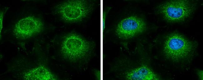 LARS2 Antibody in Immunocytochemistry (ICC)