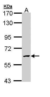 GALNS Antibody in Western Blot (WB)
