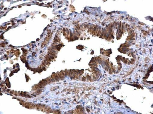 CD74 Antibody in Immunohistochemistry (Paraffin) (IHC (P))