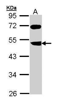 FBXL3 Antibody in Western Blot (WB)