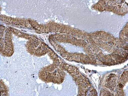 FIS1 Antibody in Immunohistochemistry (Paraffin) (IHC (P))