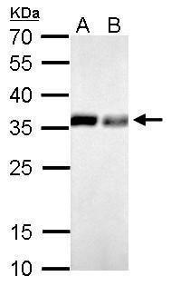 PPA1 Antibody in Western Blot (WB)