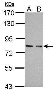 cGKI Antibody in Western Blot (WB)