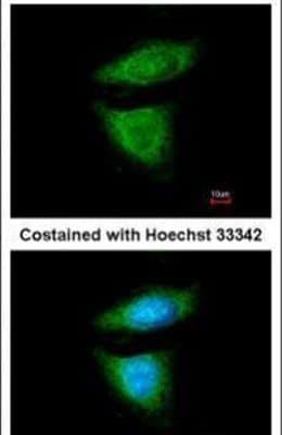 DYNC1I2 Antibody in Immunofluorescence (IF)