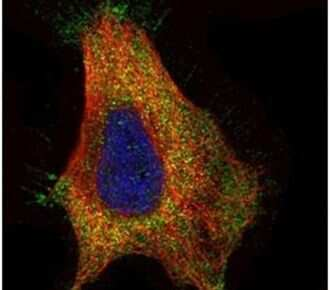 GAD65 Antibody in Immunocytochemistry (ICC/IF)