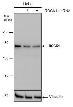 ROCK1 Antibody in Knockdown