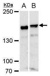 ROCK1 Antibody in Western Blot (WB)