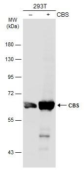 CBS Antibody in Western Blot (WB)