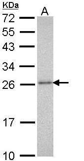 PSMA3 Antibody in Western Blot (WB)