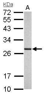 PSMA6 Antibody in Western Blot (WB)