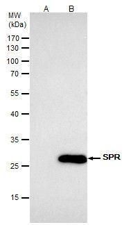 SPR Antibody in Immunoprecipitation (IP)